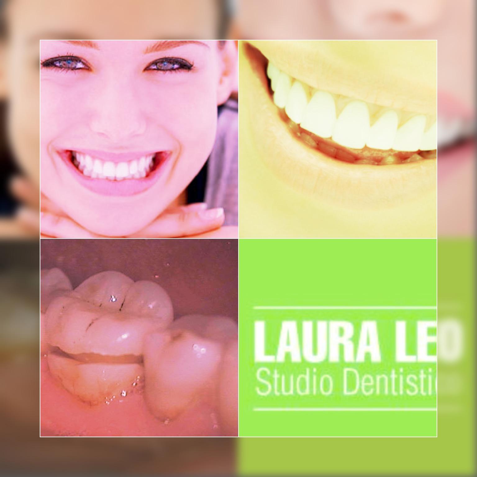 Studio Dentistico Laura Leo - Terapie - CONSERVATIVA