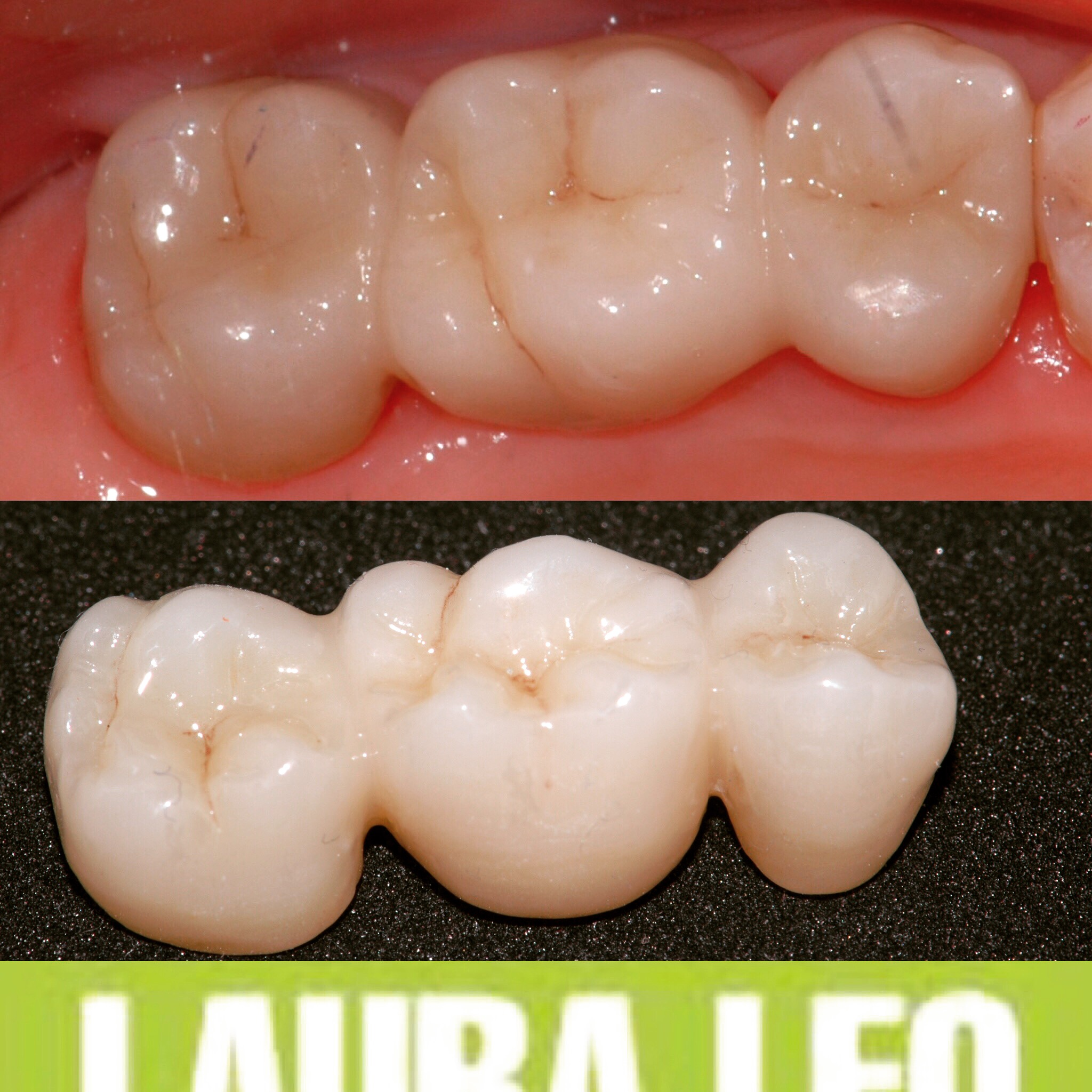 Studio Dentistico Laura Leo - Terapie - PROTESI FISSA