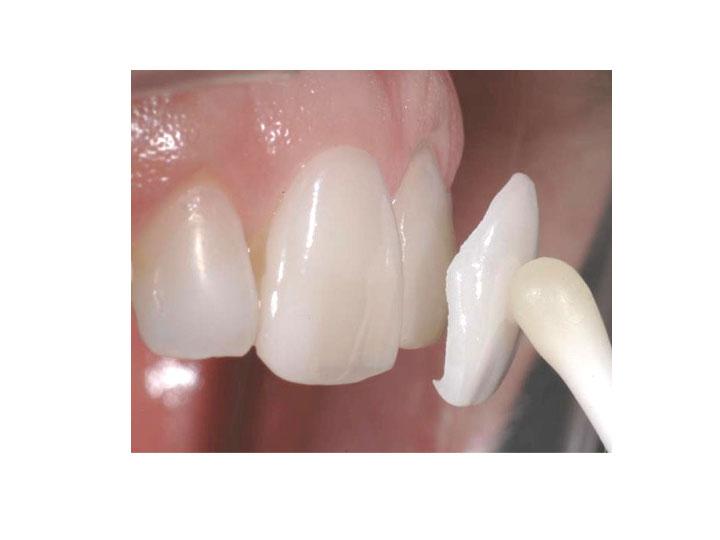 Studio Dentistico Laura Leo - Terapie - ODONTOIATRIA ESTETICA